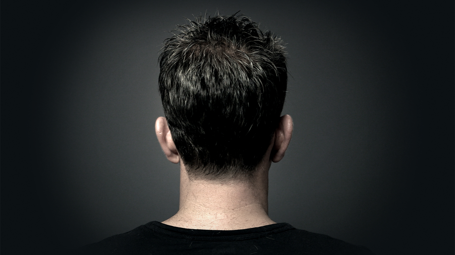 Toronto's best hair replacement and hair loss specialists.