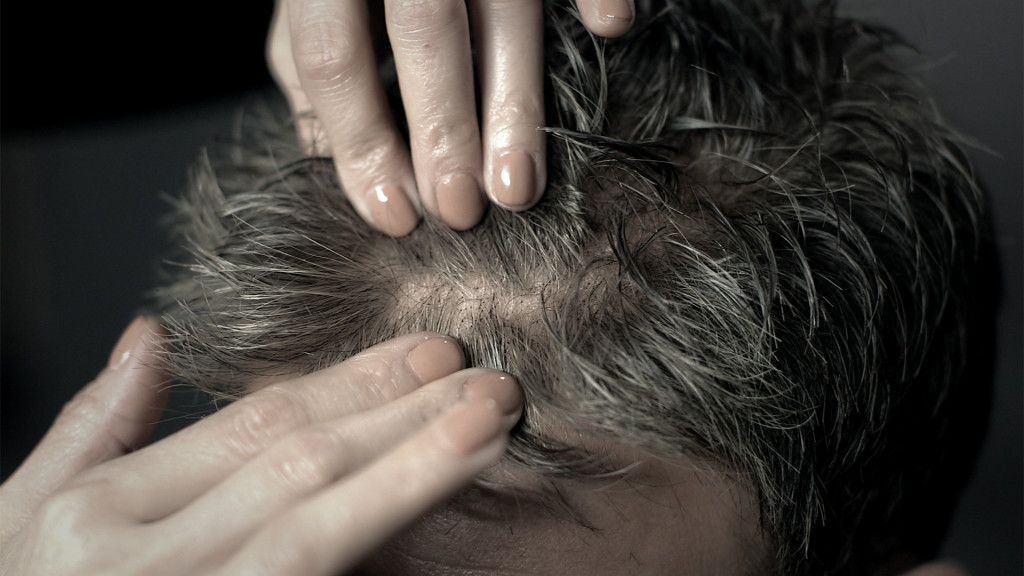 Get info on Hair Loss and hair replacement in Canada.