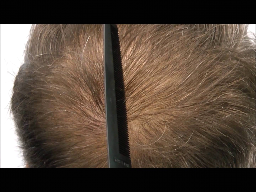 The Aftermath Of A Hair Transplant 7 Common Risks 3rd Dimensions