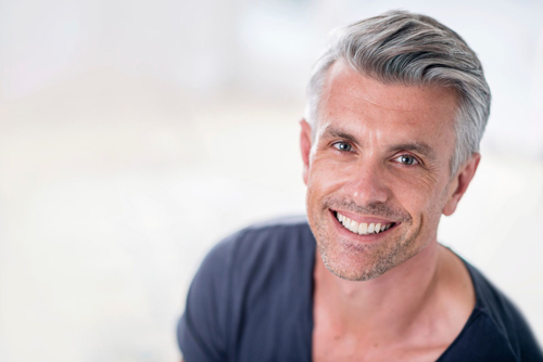 The Top Non Surgical Hair Replacement Systems in Toronto is NOW Providing Services in the US and UK.