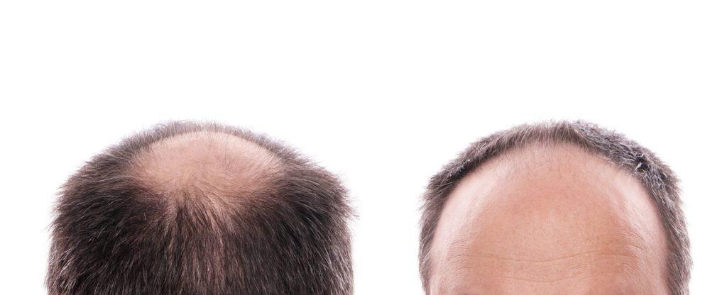 detecting male hair loss