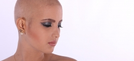 Chemo Hair Loss Prevention Tips