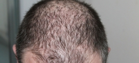 Which age is best for a hair transplant or Hair replacement?